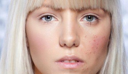 Может ли быть потница на лице у взрослого? Чем лечить?