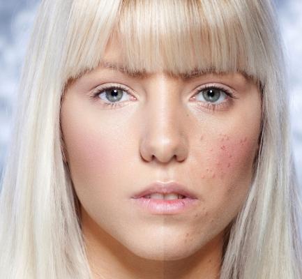 потница на лице как выглядит