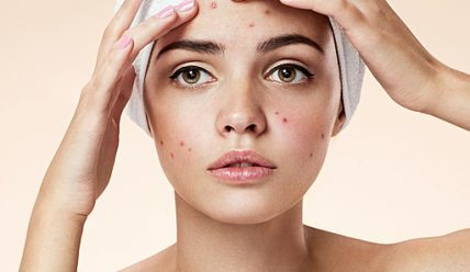 Как лечить розовые угри на лице?