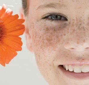 девушка с веснушками и цветком