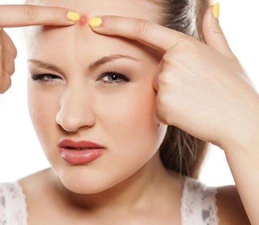 Фурункул на лице: как лечить и избавиться самостоятельно