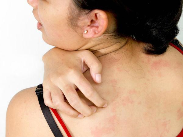 женщина чешет сыпь на спине