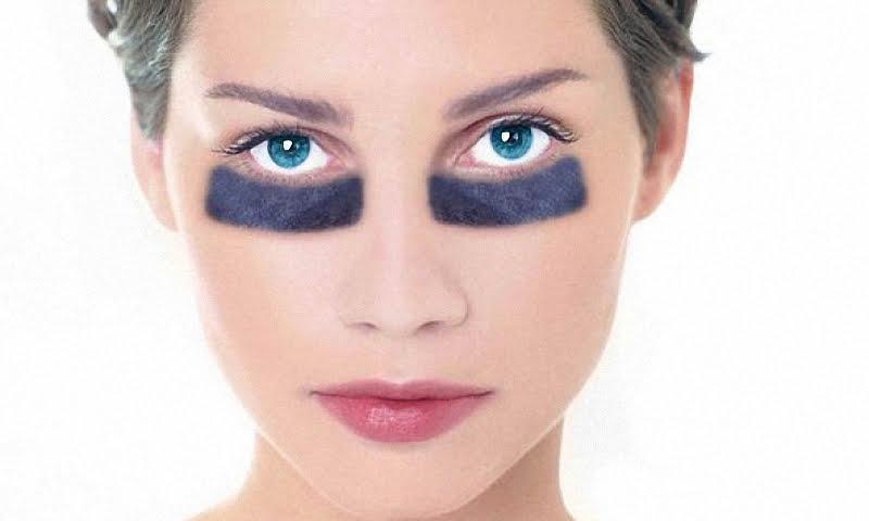 женщина с темными пятнами под глазами