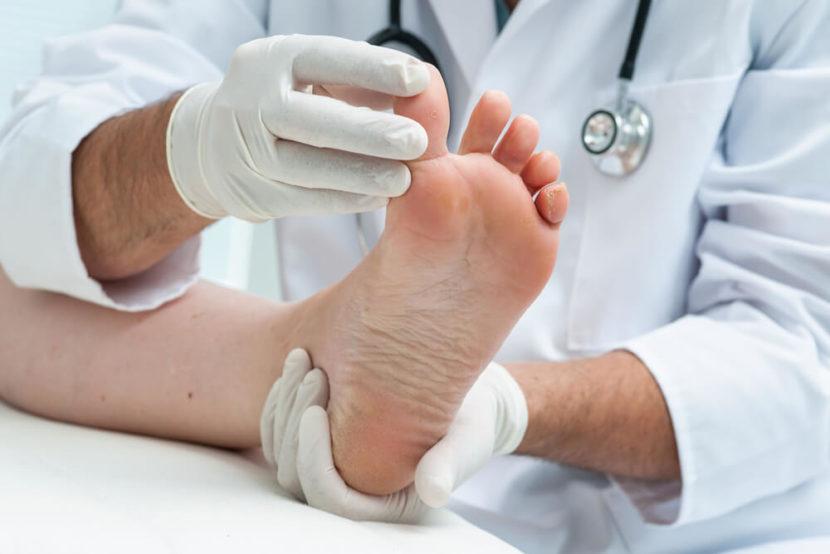 осмотр ступни врачом