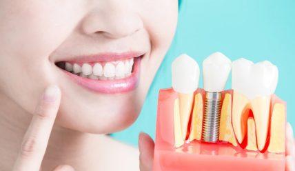 Решиться ли на зубной имплант— все плюсы и минусы