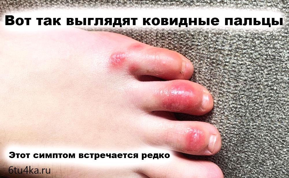 ковидные пальцы Симптомы что вы уже переболели коронавирусом