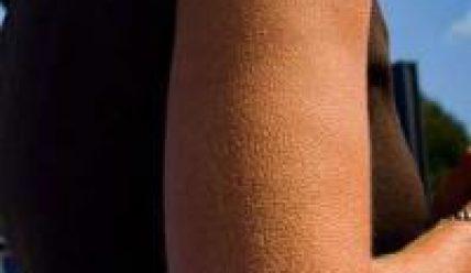 Пупырышки на коже: как от них избавиться?