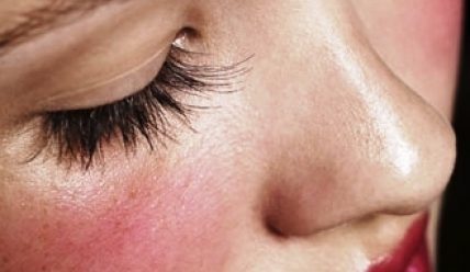 Красное пятно на лице чешется и шелушится