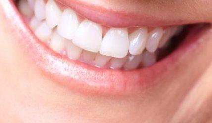 Как отбелить и чистить зубы содой