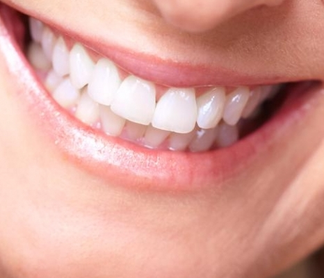 otbelivat-zuby-sodoy