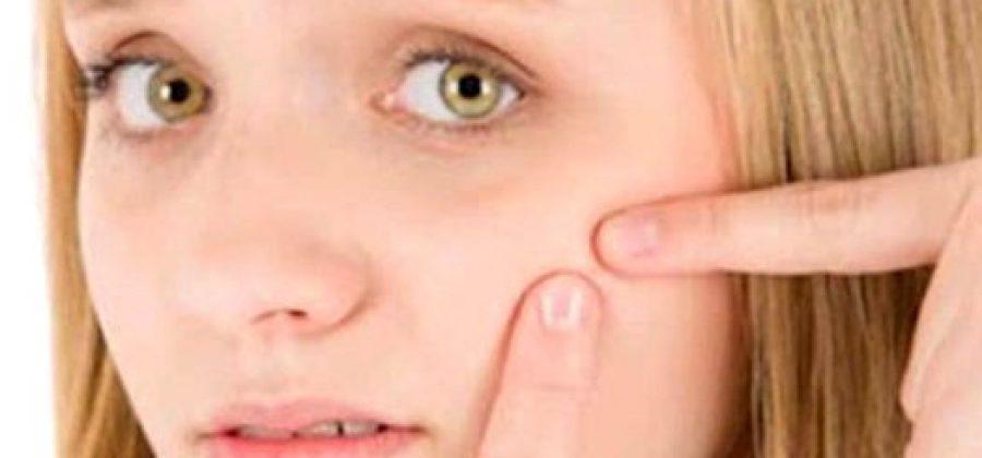 Прыщи на щеках у женщин: как избавиться?